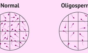 Что такое олигоспермия и как она влияет на зачатие?