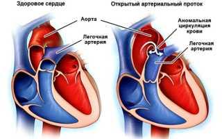Открытый артериальный проток (ОАП) сердца у детей
