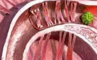 Что такое трубное бесплодие и как его лечить?