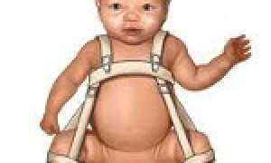 Дисплазия тазобедренного сустава у новорожденных и грудничков