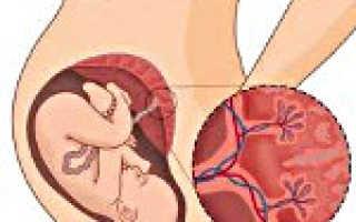 Причины и последствия преждевременного старения плаценты