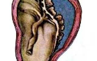 Симптомы и последствия отслойки плаценты на поздних сроках беременности
