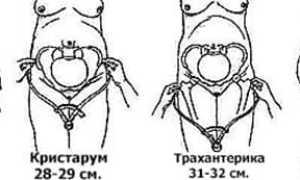 Как измерить размер таза при беременности и какие нормы существуют?
